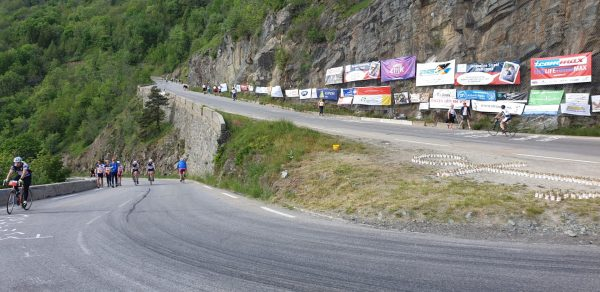 The hairpins